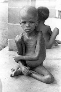 Biafran child