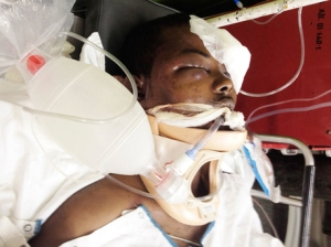 Mario Deane fighting for his life at Cornwall Regional Hospital after the beating.