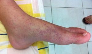 "The horrible chikungunya rash. ""Chik V"" turned out to be a far more serious matter than we were led to believe."