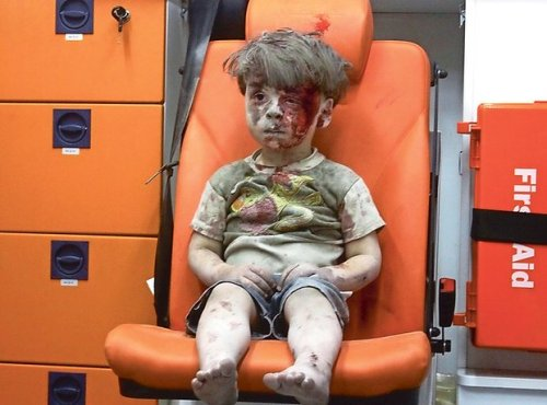 The image of Omran Daqneesh, rescued from the rubble of his apartment block in Aleppo, Syria after an air raid, has shocked the world. Photograph: Anadolu Agency/Getty Images